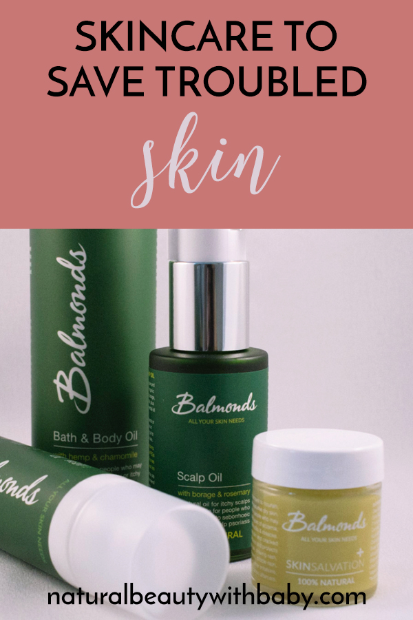 Treat eczema, psoriasis, and dry skin with Balmonds skincare. Rich, healing, natural skincare to soothe and protect. Read my full review. #naturalskincare #naturalskincareproducts